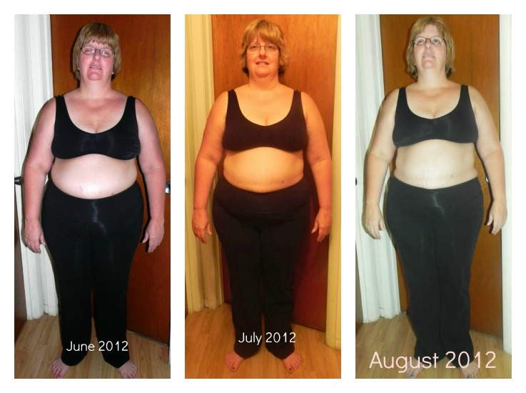 Weight loss without extra skin image 4